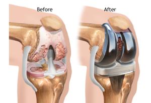 umjetni zglob koljena